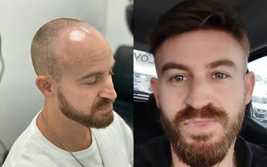 hair toupee for men