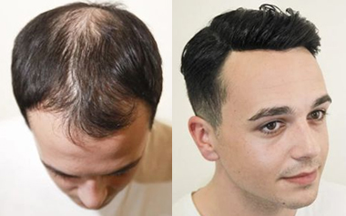 Why do you pay more attention to high-quality men's hair toupee?