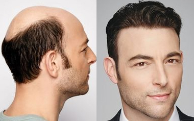 Human Hair Toupee For Men: The Perfect Choice For Everyone