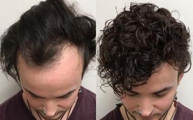 Basic knowledge of men's custom toupee hair