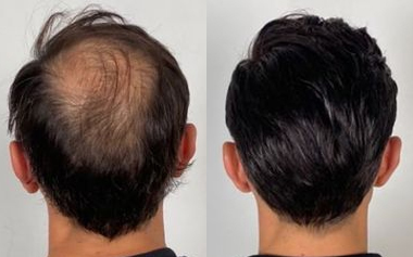 Enjoy natural life again with toupee for men
