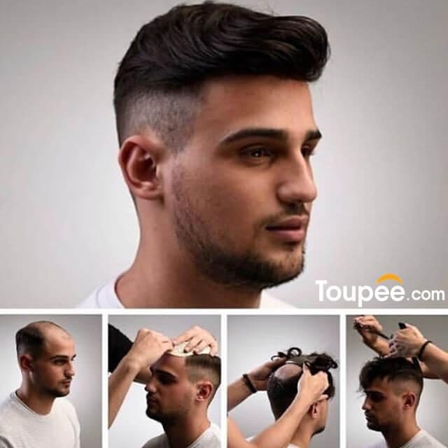 hair_system